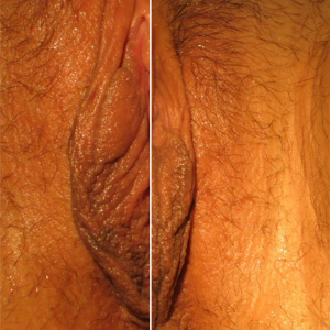 Rejuvenecimiento Vaginal en Monterrey